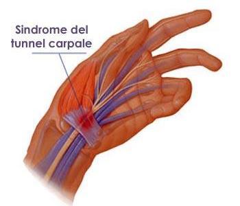 diagnosi in neurochirurgia a Bologna